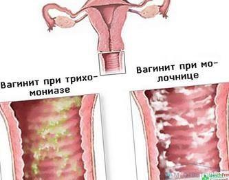 Бактеріальний вагніоз як причина виділень з запахом тухлої риби