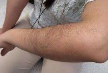 Як можна швидко позбутися назавжди від волосся на руках народними засобами в домашніх умовах