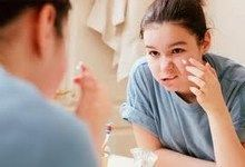 Як правильно доглядати за шкірою обличчя в підлітковому віці