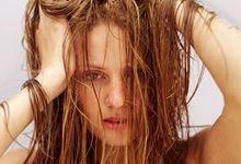 Як зняти подразнення і свербіж шкіри голови після фарбування. Причини і лікування недуги