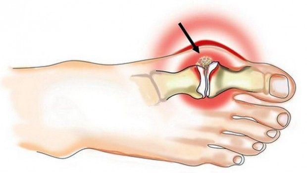 Лікування подагри на ногах