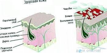 Лікування псоріазу - рекомендації та поради.