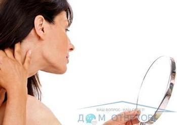 Легке печіння області щік і рук