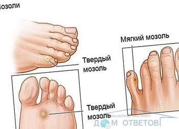 Мозолі біля великого пальця і мізинця на ногах. Що це може бути і що робити?