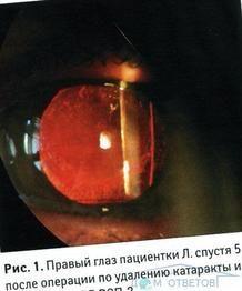 Ускладнення після операції з видалення катаракти