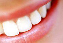 Відбілювання зубів в домашніх умовах народними засобами. Як швидко відбілити зуби вдома