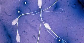 Підвищена в`язкість сперми: наслідки