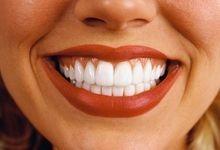 Прості і швидкі способи відбілити зуби домашніх умовах. Як робити посмішку білосніжною