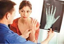 Здоров`я кісток і суглобів. Продукти для зміцнення кісток, профілактика і лікування остеопорозу