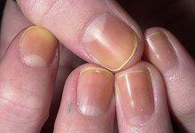 Жовті нігті, що робити? Причина та як позбутися від нездорового кольору